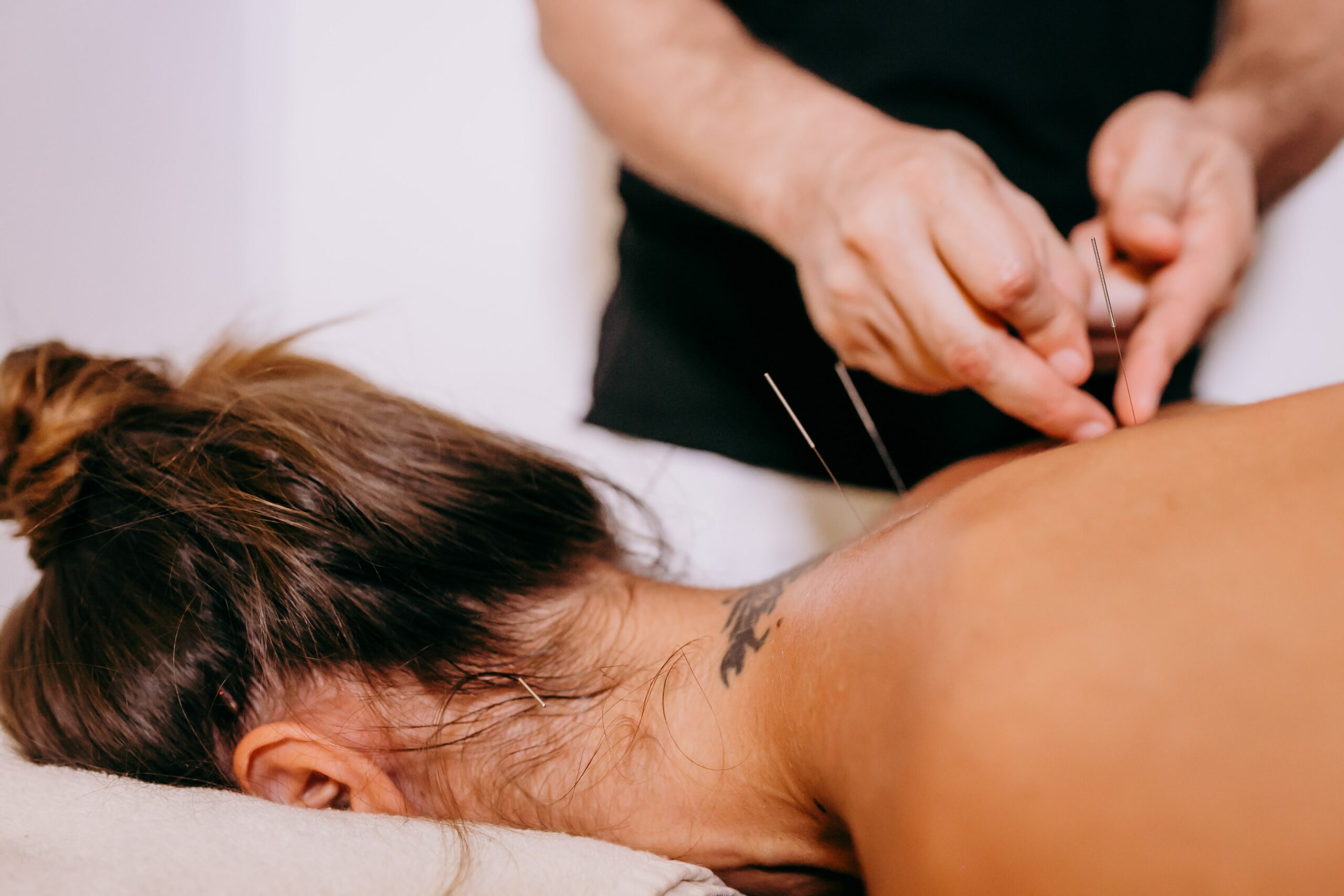 Calgary WOW Centre Acupuncture